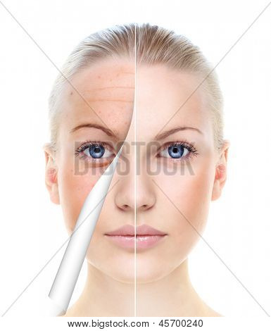 Beautiful woman's portrait isolated on white, before and after retouch, skin care.