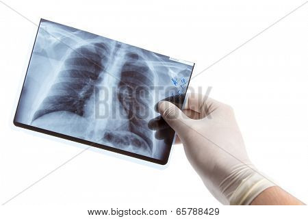 Male hand in medical glove holding lung radiography, isolated on white background