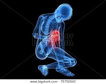 painfull knee