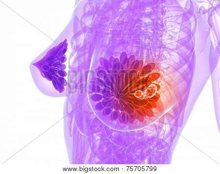 breast cancer illustration