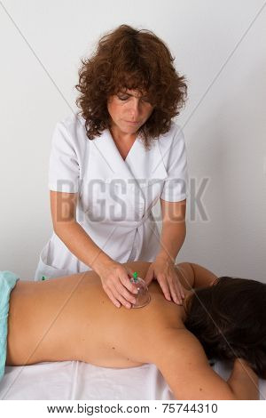 Woman With Vacuum Cups On Her Back