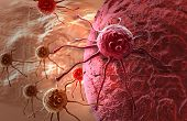pic of stomach  - cancer cell attack made in 3d software - JPG