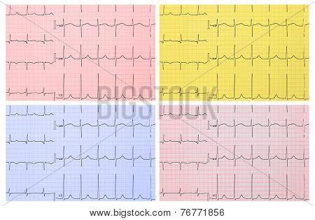Medical Background. Ecg. 4 Types Of Toning.