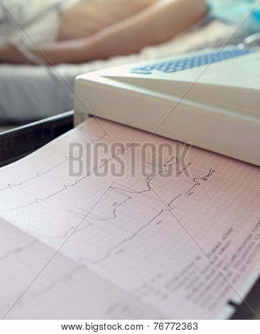 Ecg Printout Of The Patient. Photos