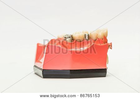 Dental Dentures Isolated On White