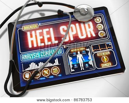 Heel Spur on the Display of Medical Tablet.