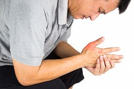 pic of gout  - Man with painful and inflamed gout on his hand around the thumb area - JPG