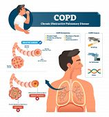 Copd Vector Illustration. Labeled Chronic Obstructive Pulmonary Disease Explanation. Lungs Inflammat poster