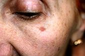 Pigmentation On The Face. Brown Spot On Cheek. Pigment Spot On The Skin. poster
