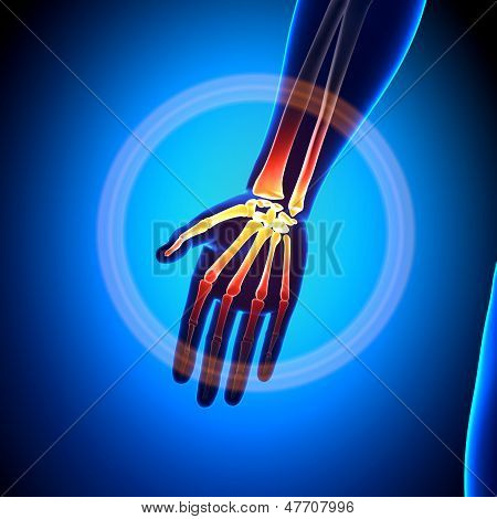 Anatomía - huesos de la anatomía de la palma