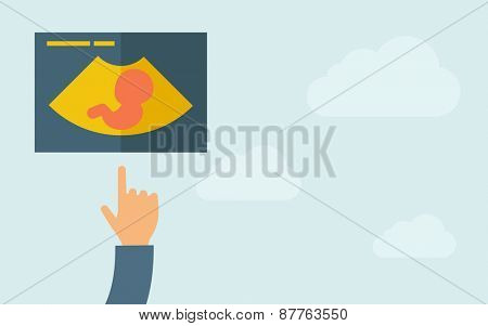 A hand pointing to ultrasound  icon. A contemporary style with pastel palette, light blue cloudy sky background. Vector flat design illustration. Horizontal layout with text space on right part.