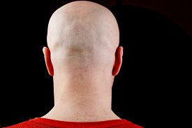 image of male pattern baldness  - Bald head middle - JPG