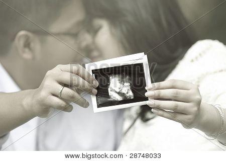 junges Paar zeigen ein Sonogramm