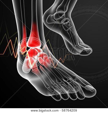 3d render medical illustration Ankle pain
