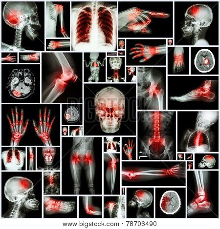 Collection X-ray Multiple Organ And Arthritis At Multiple Joint (rheumatoid,gout)