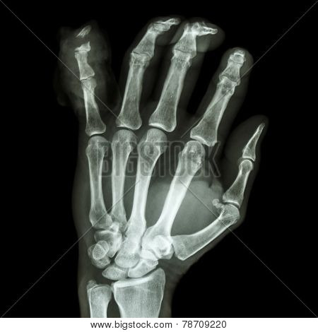 Fracture Distal Pharange Little Finger