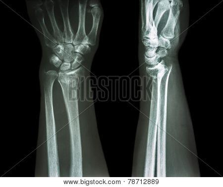 fracture distal radius (Colles' fracture) (wrist broken)