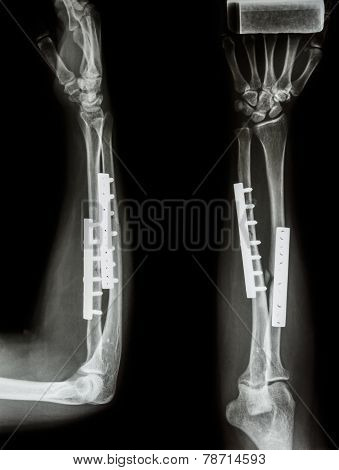 Fracture Shaft Of Radius & Ulnar Bone. It Was Operated And Internal Fixed By Plate And Screw