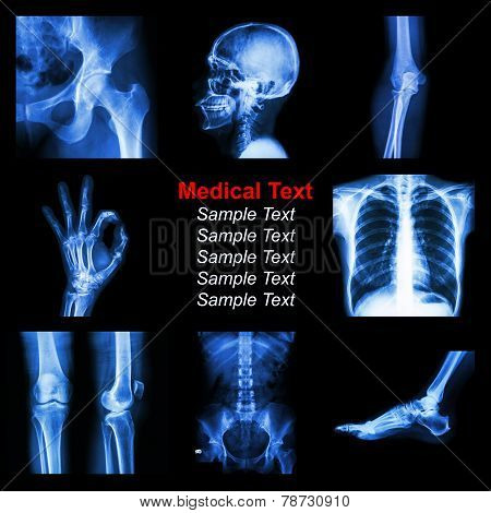 Collection Of X-ray Part Of Human