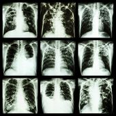 picture of tuberculosis  - Collection Of Lung Disease  - JPG