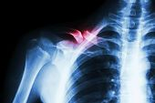 picture of fracture  - film x - JPG