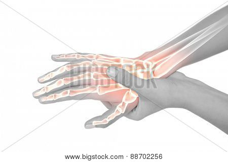 Digital composite of Highlighted bones of woman with hand pain