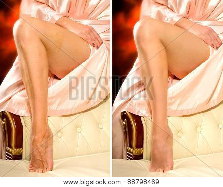 Comparison legs of a woman without and with retouching