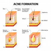 stock photo of papule  - Formation of skin acne or pimple - JPG