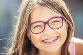 Happy Smiling Girl With Dental Braces And Glasses. Young Cute Caucasian Blond Girl Wearing Teeth Bra poster