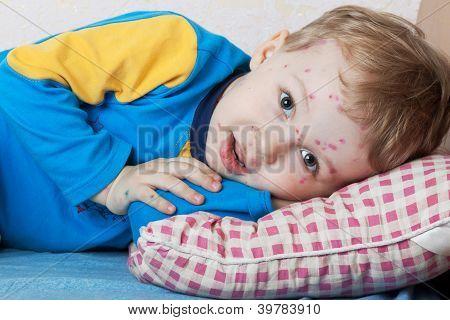 Boy Suffers Chickenpox