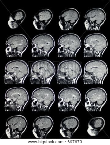 MRI Brain Sagittal MS1