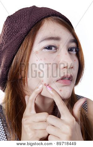 Teen Girl Pressing Her Pimple
