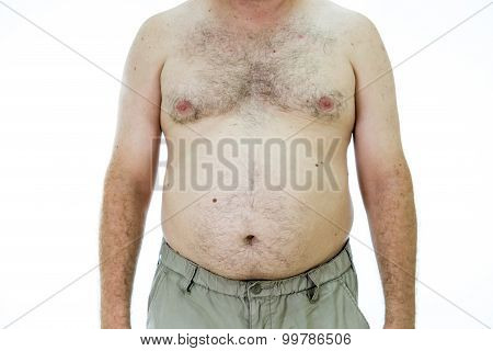 Man With Fat Stomach