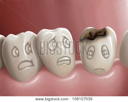 Illustration - Dental caries