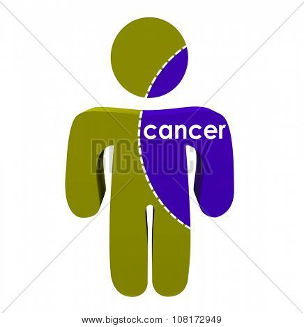 Cancer word spreading on a human or person's body to illustrate advanced stage or spreading of disease