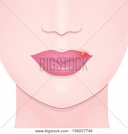 cold sore lip