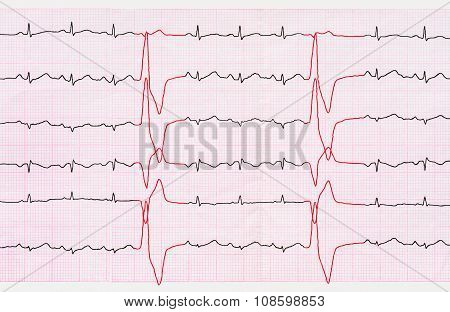 Tape Ecg With Ventricular Premature Beats (quadrigemini)