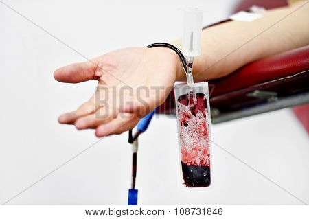 Blood Donor Hand Detail