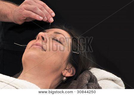 Acupuncture, Dark