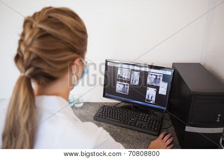 Dental assistant looking at x-rays on computer at the dental clinic