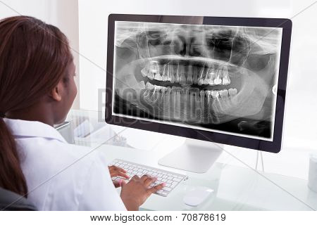 Female Dentist Examining Jaw Xray On Computer In Clinic