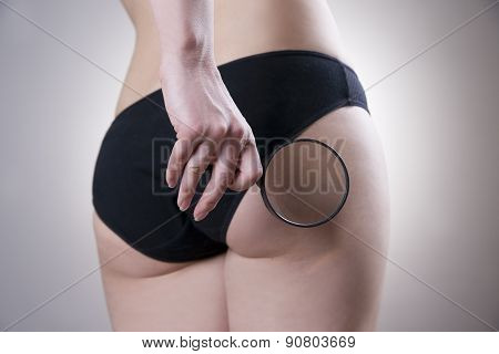 Fatty Female Buttocks