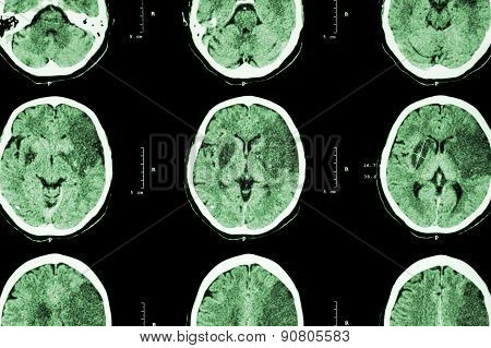 Ischemic stroke : ( CT of brain show cerebral infarction at left frontal - temporal - parietal lobe ) ( nervous system background )
