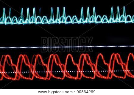 Ecg Graph On The Monitor Pixelated