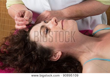 Acupuncture Needles On Forehead Of A Woman