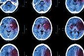 stock photo of temporal lobe  - Ischemic stroke  - JPG