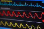 picture of ecg chart  - Waves ECG on the monitor in perspective - JPG
