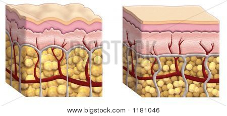 Cellulite Cross Section