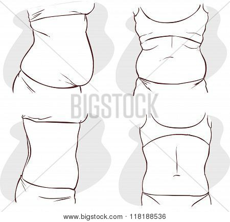 Vector Illustration Of A Fat Belly Before And After Treatment.