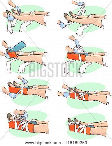 Vector Illustration Of A Splinting A Broken Leg